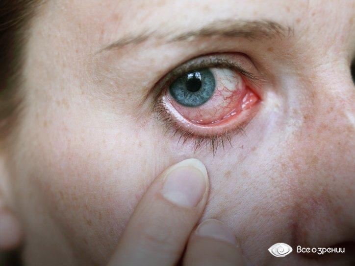 Почему часто болит горло и температура