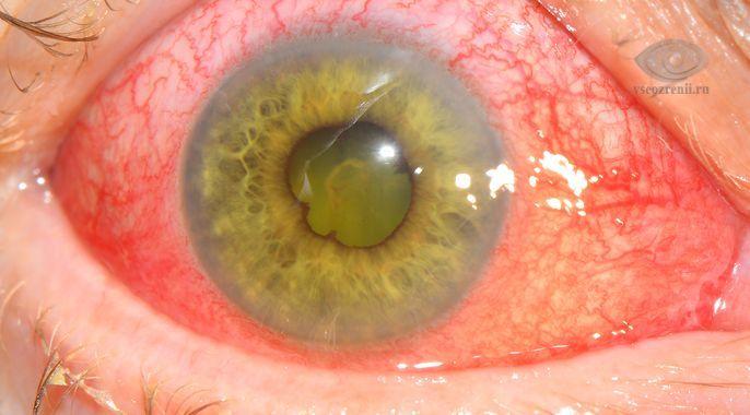 Увеит, причины, симптомы, лечение увеита. Все о глазных болезнях.