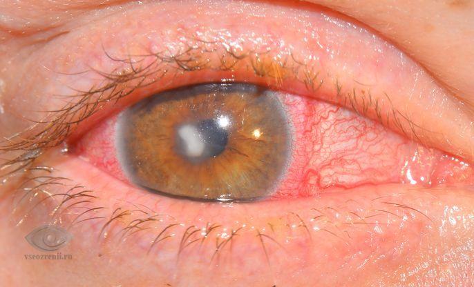кератит глаза лечение