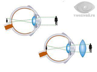 Восстановление зрения по методу поля
