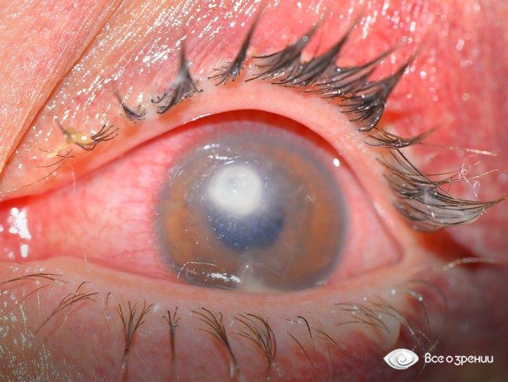 Болит внутри глаза что это