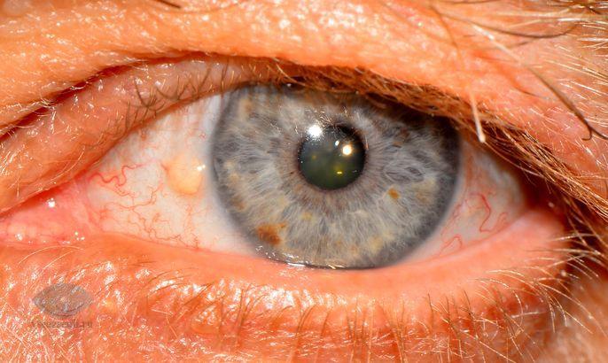 пингвекула глаза фото