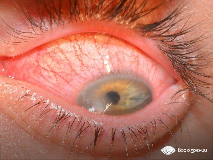 Заболевание глаз из за того что в глаза попала пыль и мы не успели промыть