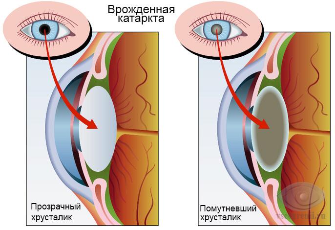 Бинокулярное зрение, причины, лечение.