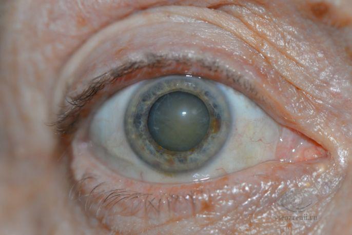 Катаракта (Cataracta) лечение, симптомы, причины, профилактика.
