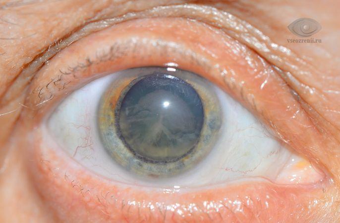 Хрусталик глаза, обзоры, описание и стоимость.