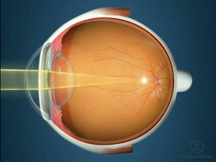 Отзывы об операции на восстановление зрения