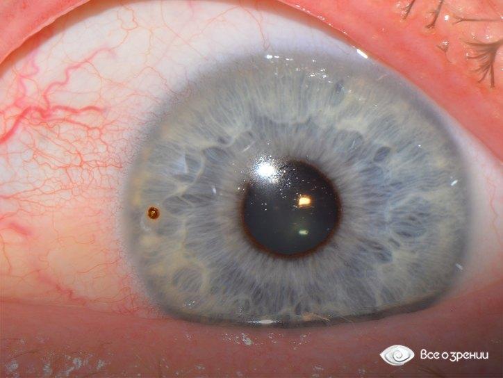 При попадании инородного тела на роговицу глаза