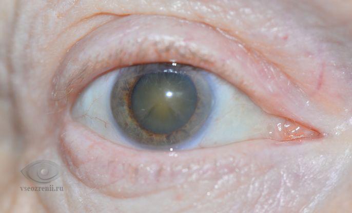 пелена при катаракте