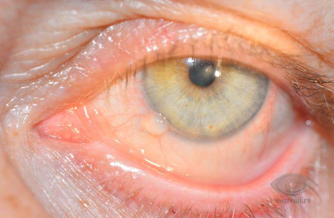 появилась аллергия на шерсть