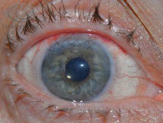 Лазерная корекция зрения минск