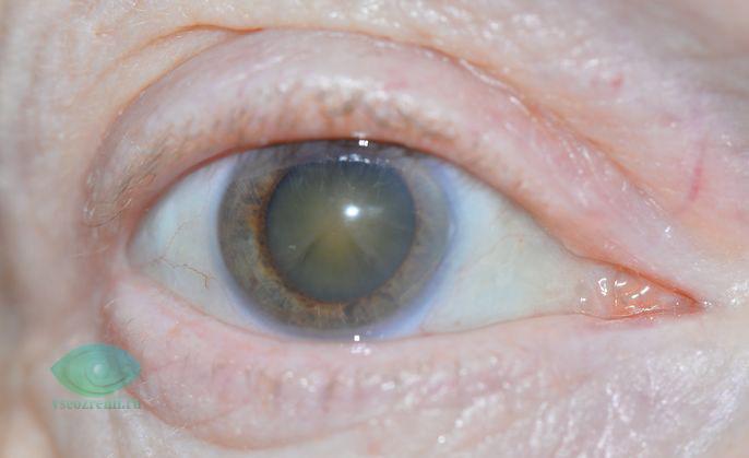 двоение при катаракте