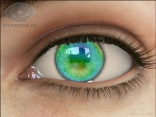 Клиники по восстановлению зрения форум