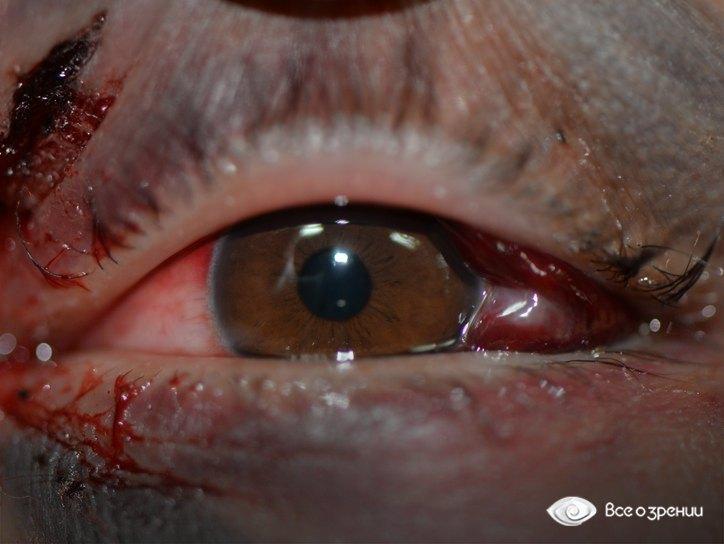 Токсичная жидкость попала в глаз