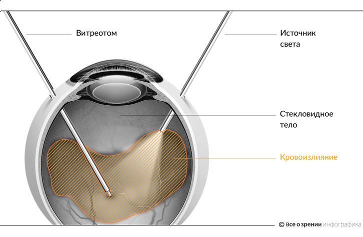 Близорукость степени, лечение, коррекция миопии 40