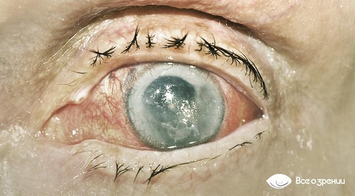 некомпенсированная-терминальная-глаукома