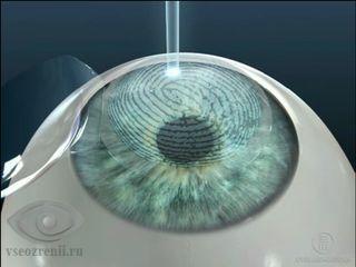 лазерная коррекция миопии