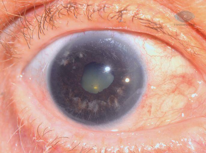 Вторичная глаукома, причины, профилактика, лечение. Все о глазных ...