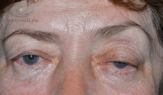 Виды масок для лица и шеи