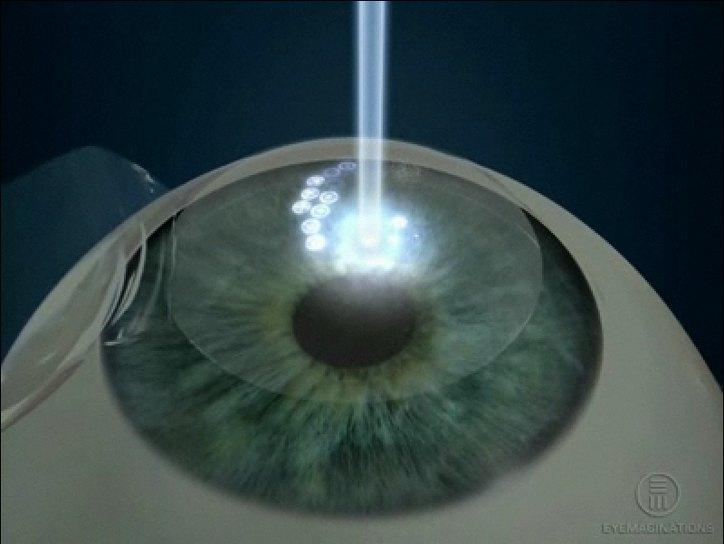 Что такое лазерная коррекция зрения