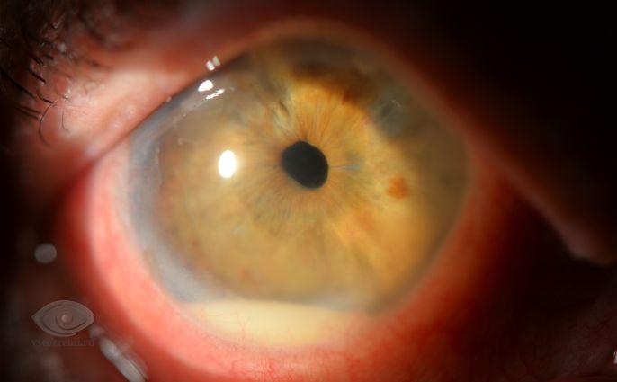 Иридоциклит симптомы, причины, лечение иридоциклита. Все о глазных ...